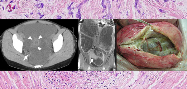 Giant cystic leiomyoma of the uterus occupying the retroperitoneal space