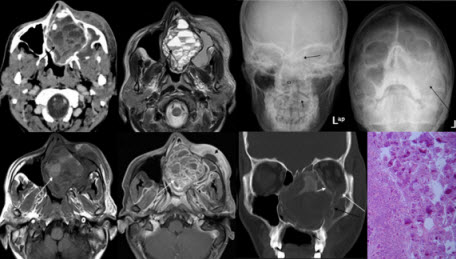 Cemento-ossifying Fibroma Of Paranasal Sinus Presenting Acutely  As Orbital Cellulitis