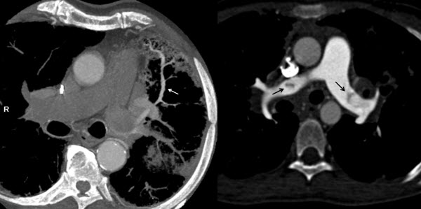 Unusual Pulmonary Arterial Filling Defect caused by Systemic to Pulmonary Shunt in the Setting of Chronic Lung Disease Demonstrated by Dynamic 4D CTA
