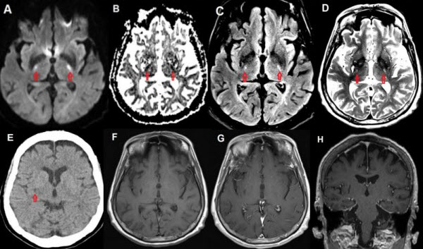 Capecitabine-induced leukoencephalopathy involving the bilateral corticospinal tracts