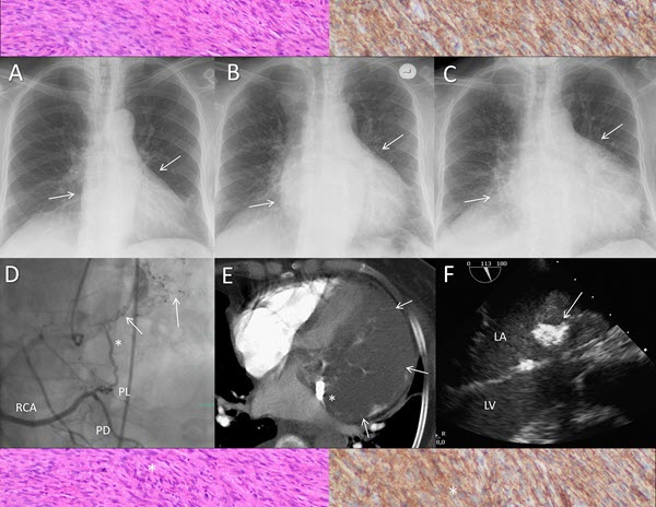 Multimodal Imaging for the Assessment of a Cardiac Mass - A Case of Primary Cardiac Sarcoma
