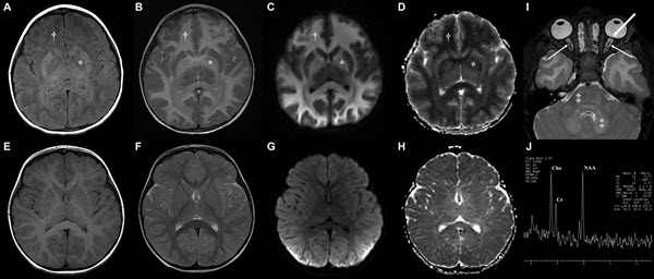 Brain Magnetic Resonance Imaging Findings in Poorly Controlled Homocystinuria