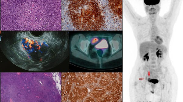 Unicentric or Multicentric Castleman disease? A case report of a pelvic intraperitoneal mass in a middle aged woman