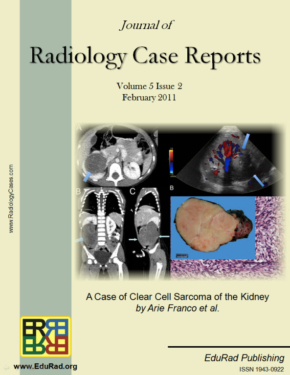 Journal of Radiology Case Reports February 2011 issue - A Case of Clear Cell Sarcoma of the Kidney by Arie Franco et al.