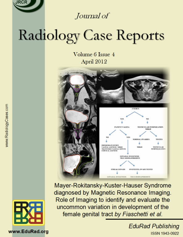 Journal of Radiology Case Reports April 2012 issue - Mayer-Rokitansky-Kuster-Hauser Syndrome diagnosed by Magnetic Resonance Imaging. Role of Imaging to identify and evaluate the uncommon variation in development of the female genital tract by Fiaschetti
