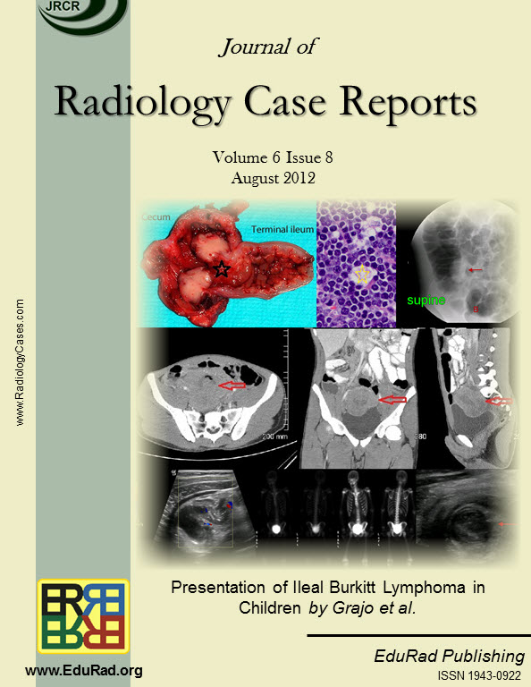 Journal of Radiology Case Reports August 2012 issue - Presentation of Ileal Burkitt Lymphoma in Children by Grajo et al.