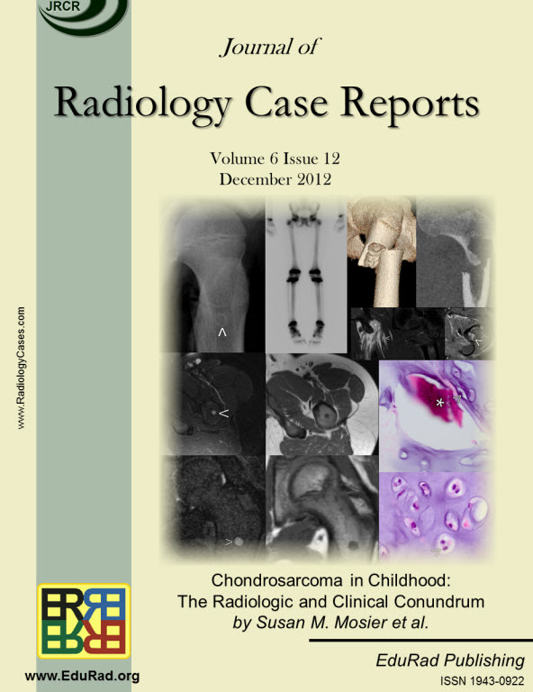 Journal of Radiology Case Reports December 2012 issue - Chondrosarcoma in Childhood: The Radiologic and Clinical Conundrum by Susan M. Mosier et al.