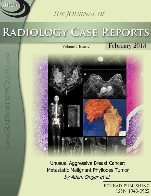 Journal of Radiology Case Reports February 2013 issue - Cover page: Unusual Aggressive Breast Cancer: Metastatic Malignant Phyllodes Tumor by Adam Singer et al.