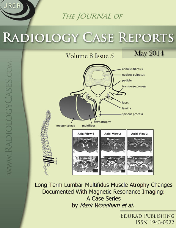 Journal of Radiology Case Reports May 2014 issue - Cover page: Long-Term Lumbar Multifidus Muscle Atrophy Changes Documented With Magnetic Resonance Imaging: A Case Series by Mark Woodham et al.