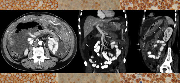 Adult abdominal Burkitt lymphoma with isolated peritoneal involvement