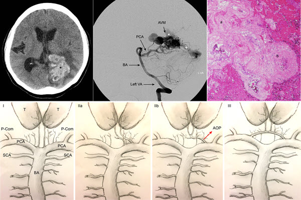 Acute Infarction in the Artery of Percheron Distribution during Cerebral Angiography: A Case Report and Literature Review
