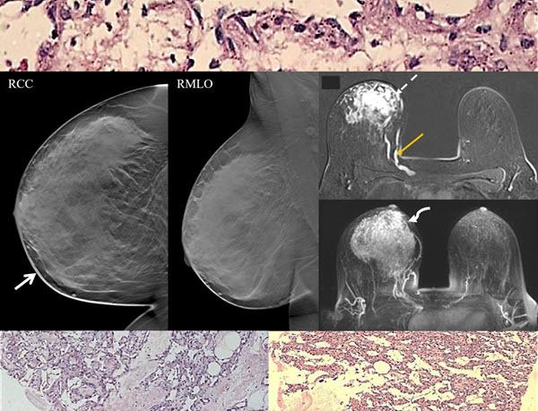 Primary Angiosarcoma Of the Breast: A Case Report