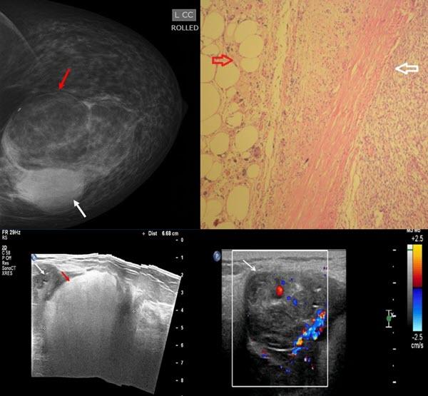 Primary Breast Liposarcoma