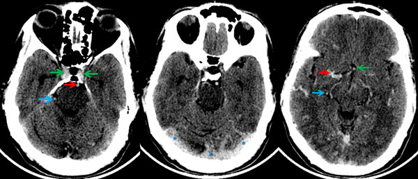Non-Enhanced CT Mimicking Contrast Enhanced CT - A Case Report on Polycythemia