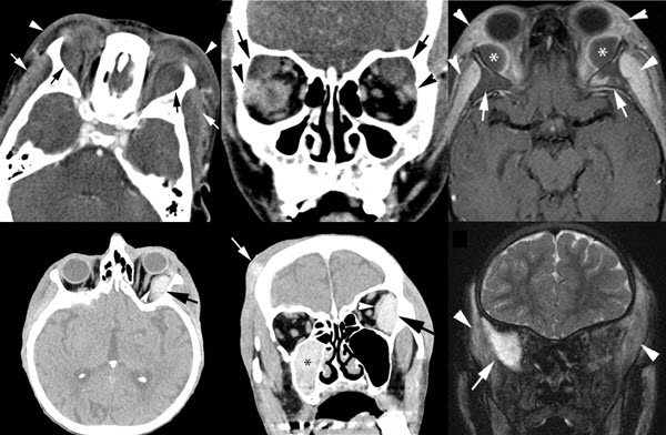 Subperiosteal Hematoma of the Orbit: A Variety of Presentations