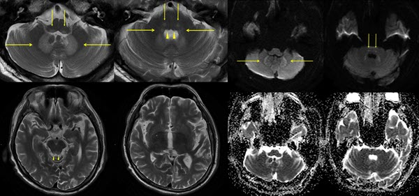 Metronidazole induced encephalopathy: case report and discussion on the differential diagnoses, in particular, Wernicke's encephalopathy