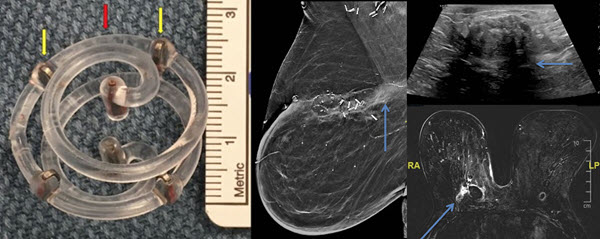 Post-operative imaging surveillance of breast cancer patients status post lumpectomy with BioZorb implant placement
