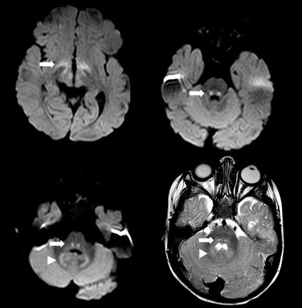 Vigabatrin-associated Reversible MRI Abnormalities in an Infant with Tuberous Sclerosis