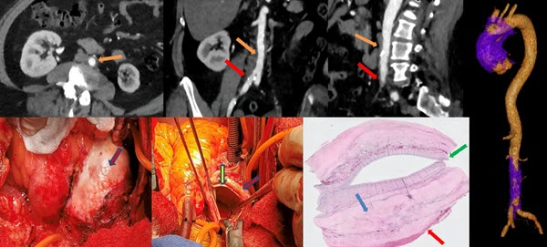 IgG4 aortitis of the ascending thoracic aorta: A case report and literature review