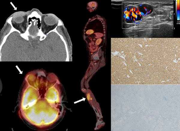 The role of whole-Body fluorine-18-fluorodeoxyglucose positron emission tomography in staging and surveillance of mucosa-associated lymphoid tissue