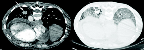 Percutaneous embolization of an incidentally diagnosed pulmonary aneurysm in a scleroderma patient