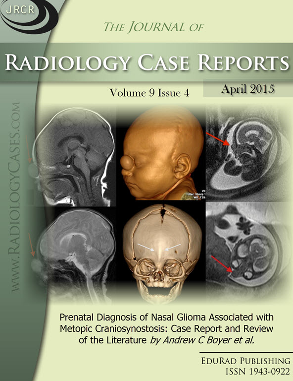 Journal of Radiology Case Reports April 2015 issue - Cover page: Prenatal Diagnosis of Nasal Glioma Associated with Metopic Craniosynostosis: Case Report and Review of the Literature by Andrew C Boyer et al.