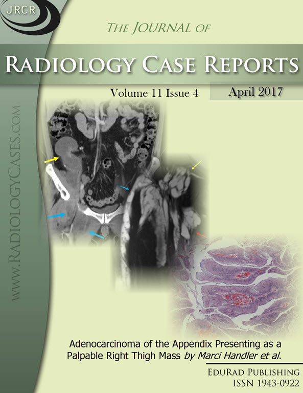 Journal of Radiology Case Reports April 2017 issue - Cover page: Adenocarcinoma of the Appendix Presenting as a Palpable Right Thigh Mass by Marci Handler et al.