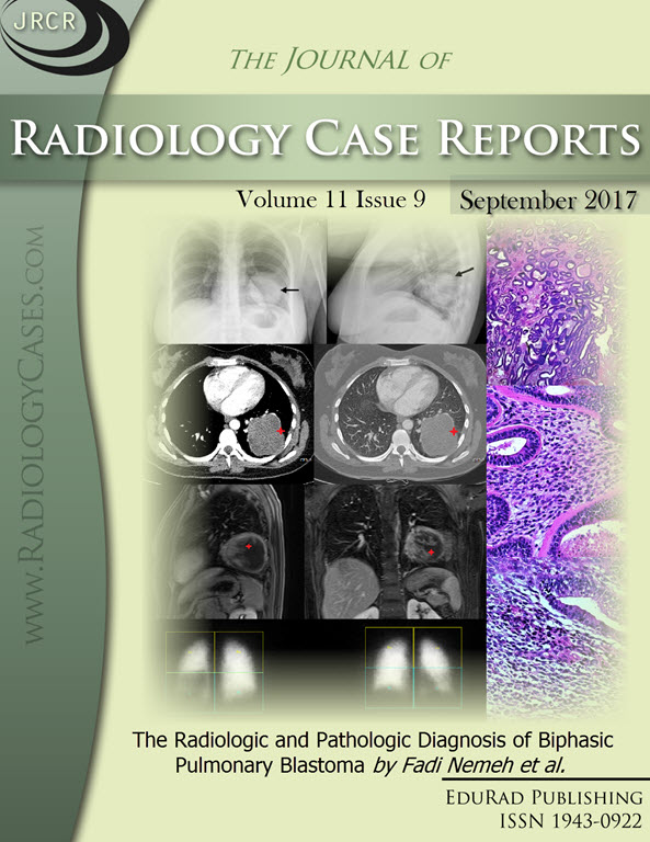 Journal of Radiology Case Reports September 2017 issue - Cover page: The Radiologic and Pathologic Diagnosis of Biphasic Pulmonary Blastoma by Fadi Nemeh et al.