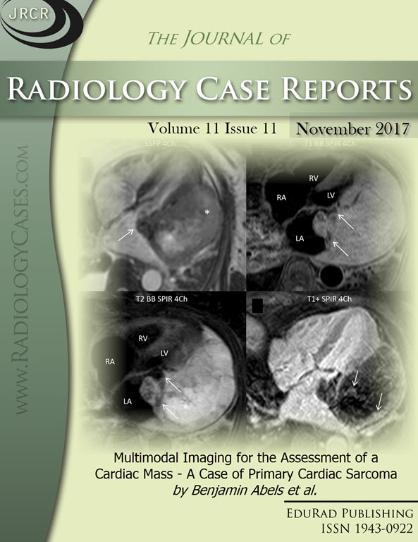 Journal of Radiology Case Reports November 2017 issue - Cover page: Multimodal Imaging for the Assessment of a Cardiac Mass - A Case of Primary Cardiac Sarcoma by Benjamin Abels et al.