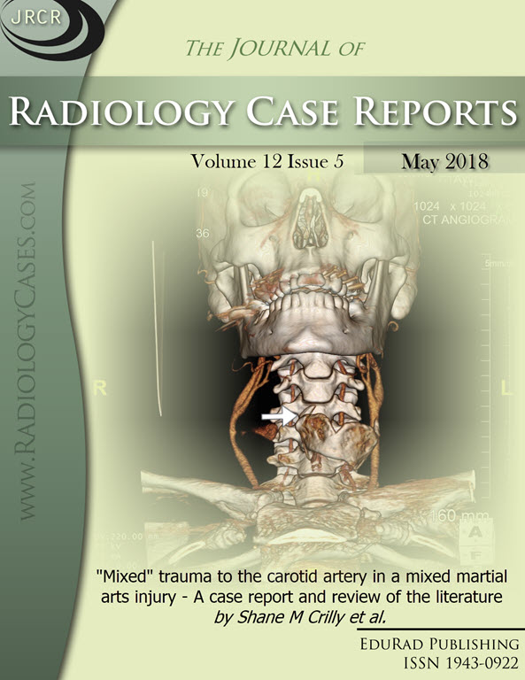 "Journal of Radiology Case Reports May 2018 issue - Cover page: ""Mixed"" trauma to the carotid artery in a mixed martial arts injury - A case report and review of the literature by Shane M Crilly et al."