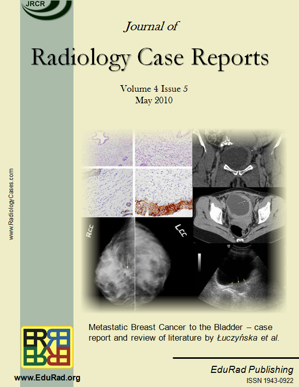 "Journal of Radiology Case Reports May 2010 issue cover page: ""Metastatic Breast Cancer to the Bladder – case report and review of literature"" by Łuczyńska et al."