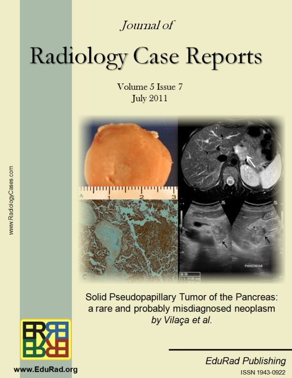 "Journal of Radiology Case Reports July 2011 issue - ""Solid Pseudopapillary Tumor of the Pancreas: a rare and probably misdiagnosed neoplasm"" by Vilaça et al."
