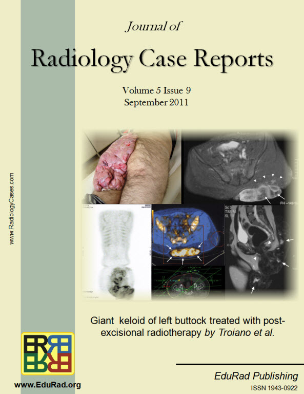 Journal of Radiology Case Reports September 2011 issue - Giant  keloid of left buttock treated with post-excisional radiotherapy by Troiano et al.