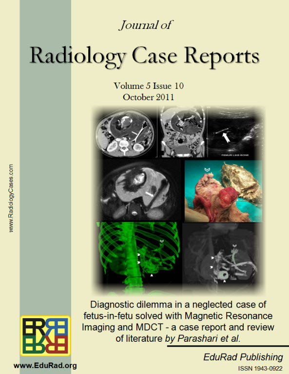 Journal of Radiology Case Reports October 2011 issue - Diagnostic dilemma in a neglected case of fetus-in-fetu solved with Magnetic Resonance Imaging and MDCT - a case report and review of literature by Parashari et al.