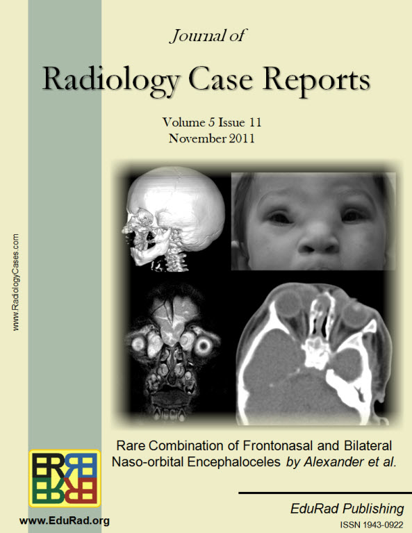 Journal of Radiology Case Reports November 2011 issue - Rare Combination of Frontonasal and Bilateral Naso-orbital Encephaloceles by Alexander et al.