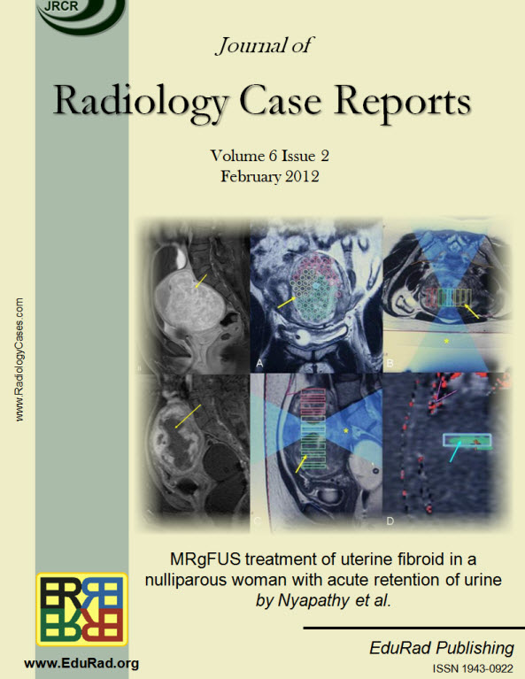 Journal of Radiology Case Reports February 2012 issue - MRgFUS treatment of uterine fibroid in a nulliparous woman with acute retention of urine by Nyapathy et al.