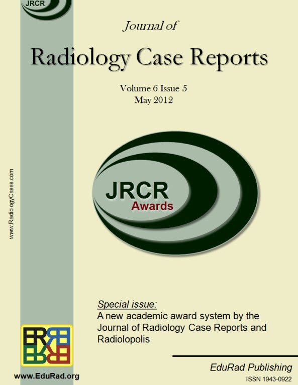 Journal of Radiology Case Reports May 2012 special issue - A new academic award system by the Journal of Radiology Case Reports and Radiolopolis