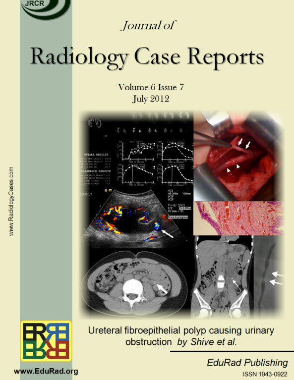 Journal of Radiology Case Reports July 2012 issue - Ureteral fibroepithelial polyp causing urinary obstruction by Shive et al.
