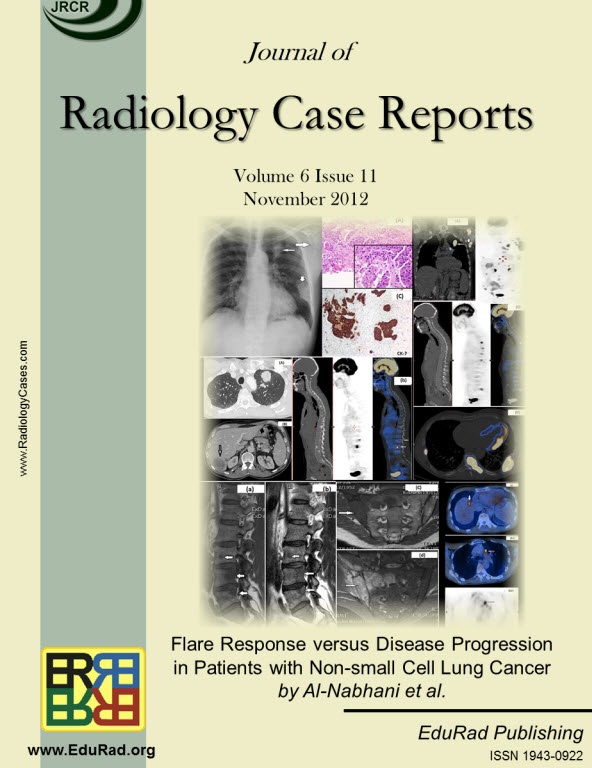 Journal of Radiology Case Reports November 2012 issue - Flare Response versus Disease Progression in Patients with Non-small Cell Lung Cancer by Al-Nabhani et al.
