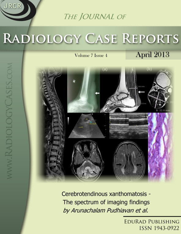Journal of Radiology Case Reports April 2013 issue - Cover page: Cerebrotendinous xanthomatosis - The spectrum of imaging findings by Arunachalam Pudhiavan et al.