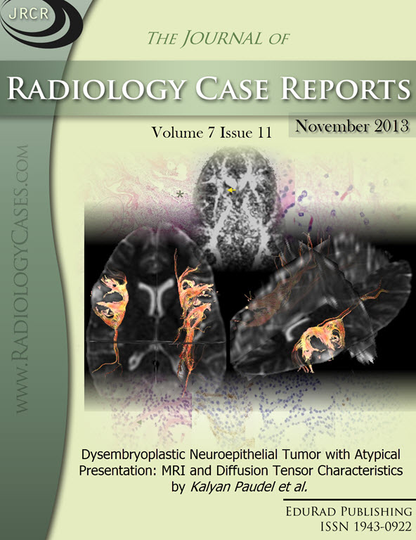 Journal of Radiology Case Reports November 2013 issue - Cover page: Dysembryoplastic Neuroepithelial Tumor with Atypical Presentation: MRI and Diffusion Tensor Characteristics by Paudel et at.