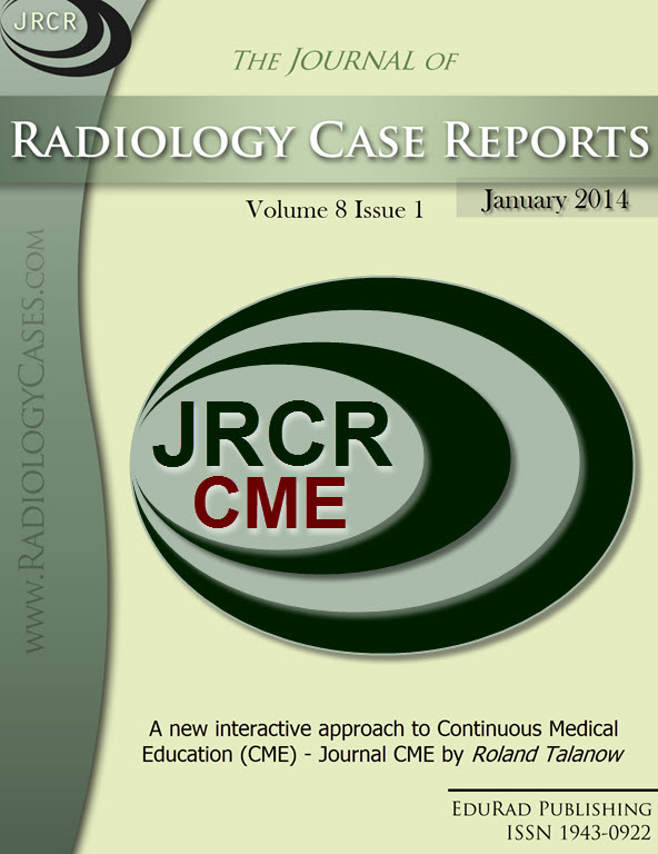 Journal of Radiology Case Reports January 2014 issue - Cover page: A new interactive approach to Continuous Medical Education (CME) - Journal CME by Roland Talanow