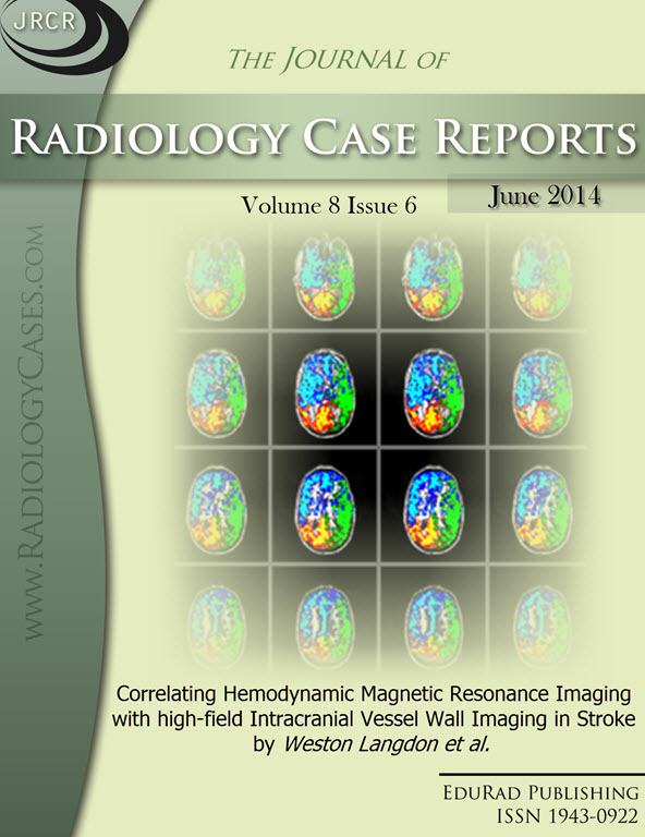 Journal of Radiology Case Reports June 2014 issue - Cover page: Correlating Hemodynamic Magnetic Resonance Imaging with high-field Intracranial Vessel Wall Imaging in Stroke by Weston Langdon et al.